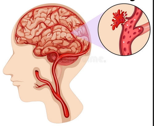 brain hemorrhage treatment service in dehradun dehradun dr vikram