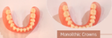 Monolithic Crowns Best Services