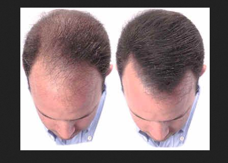 Hair Fall And Baldness Treatment