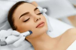 Microdermabrasion Treatment Service