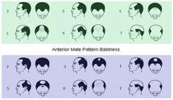 Male Pattern Baldness Service