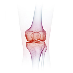 Orthopaedic Treatment