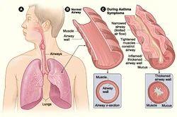 Asthama Treatment