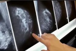 Breast Cancer Treatment Service
