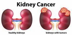 Kidney Cancer Treatment