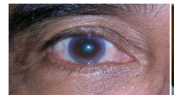 Cataract Surgery Service