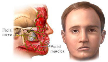 Medical information on facial twitches
