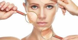 Laser For Unslightly Blood Vessels On Face & Body