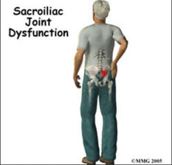 SI Joint Pain Treatment