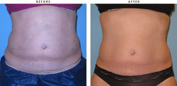 Coolsculpting Treatment for Tummy Reduction