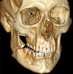 Facial Fracture Surgery Services