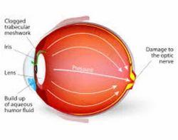 Glaucoma Treatments Services