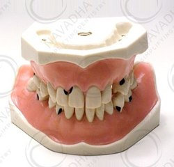 Manual Parodonthology Jaw With Diffusely Carious Teeth, For Dental Training