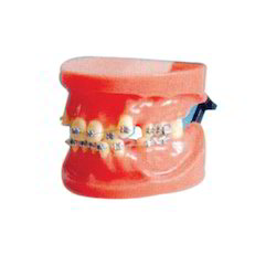 Fixed Orthodontic Model (Dislocation)
