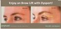Filler Treatment for Eyebrow Lifting in chennai