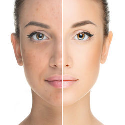 PRP Treatment for Skin Whitening