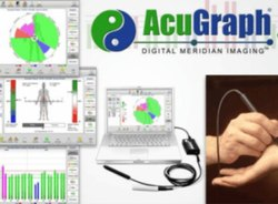 Acugraph Whole Body Heart Neuro Check Up