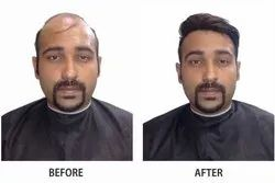 Non Surgical Hair Replacement