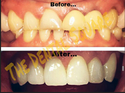 Advanced Root Canal Therapy Service