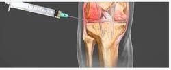 PRP A Boon For Knee Arthritis Service