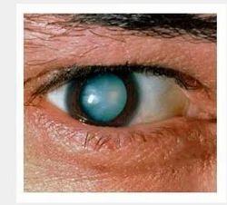 Eye Cataract Treatment Service
