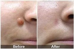 Moles and Skin Tag Removal Treatment