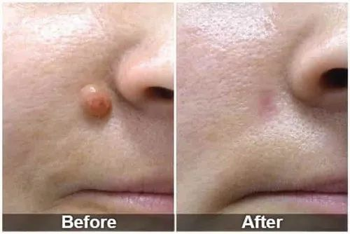 Moles And Skin Tag Removal Treatment In Chennai At Rs 500 Box