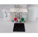 ASO Latex 50T Kit By Latex Enhanced Immune Turbidimetry