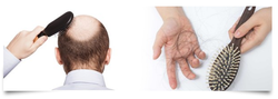Homeopathy Treatment Services For Alopaecia Or Hairloss
