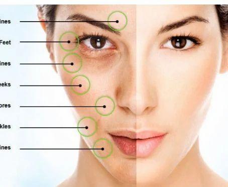 mda skin  Skin Treatment in New Delhi, Kalkaji by Younique Aesthetic Clinic ...