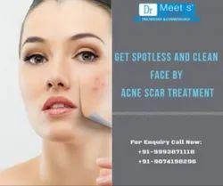 Acne Scar Treatment Service