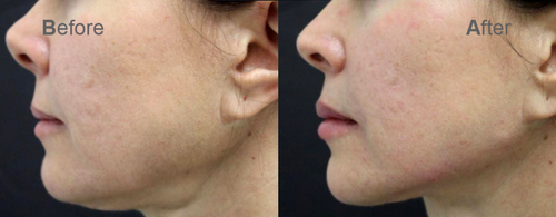 fillers treatment - Get Rid of Double Chin with Botox