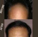 Hair Gain Treatment