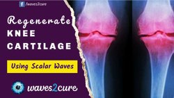 Without Surgery Avoid Knee Replacement Until Trying Bioresonance Therapy