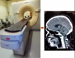 CT Scan Consultation Service