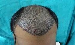 Men Baldness Solution, For Personal