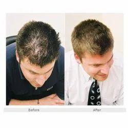 10 Am To 6 Pm Unisex Hair Glue Bonding Service