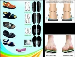 Diabetic Foot Care Services