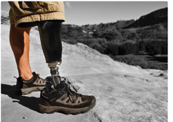 Functional Prosthetic Carbon Fiber,Aluminum Alloy Prosthetics Foot, Below The Knee