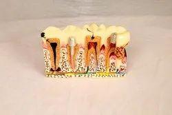Three Tooth Model