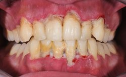 AE Naturals Best Ayurvedic Medicine For Teeth,Gums And Mount Care, For Personal