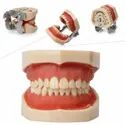 Pyrax Jaw Set With Articulator