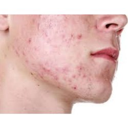 Ayurvedic Treatment For Acne Vulgaris Service