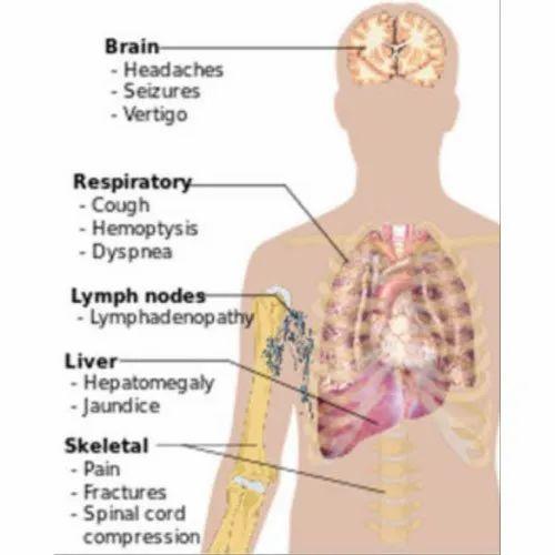 metastatic cancer details)