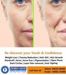 Laser Machine & Manual Double Chin and Face Lifting Treatment