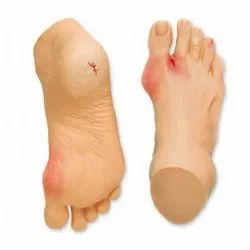 Common Foot Problem Anatomy Model