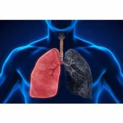 Lung Cancer Treatment Service