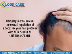 Hair Patch Service