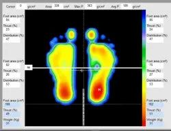 Foot Pressure Mapping System, Foot Scanner