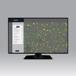 Offline CASA Software (Computer Assisted Semen Analysis) Model: SpermPro, For Windows, Free Demo/Trial Available